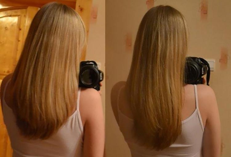 результат роста волос спустя 6 недель